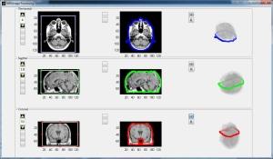 MRI image processing